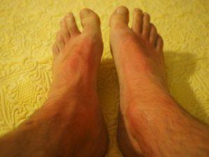 Read more about the article Che dermatite da contatto indossi?